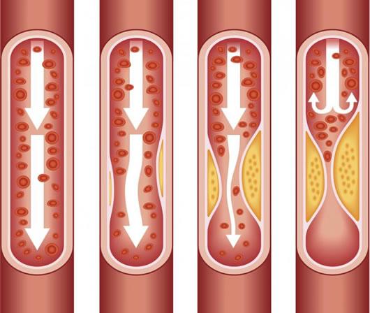 Serrano Schinken und Arteriosklerose