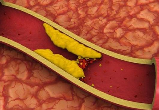 Serrano Schinken und Cholesterin