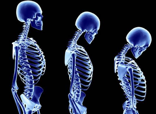 Serrano Schinken und Osteoporose